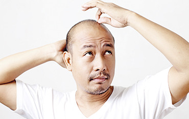 Picture of an adult bald asian male.